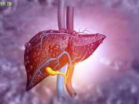 تشخیص کبد چرب و نحوه درمان آن - حرفه ای
