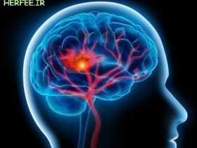 نحوه افزایش جریان خون به مغز
