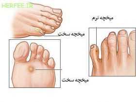 درمان میخچهی پا با روشهای پزشکی