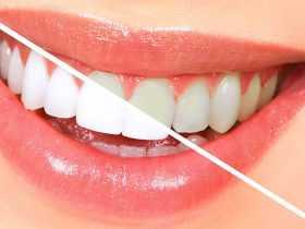 علت و دلیل مهم زردشدن دندانها و درمان آن