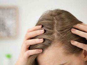 بدون کوتاه کردن مو از شر موخوره خلاص شوید
