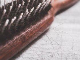 چگونه آلوپسی (ریزش سکهای مو) را به طور طبیعی درمان کنیم؟