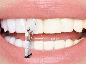 10 موضوع بهداشت ناشی از بهداشت بد دهان و دندان